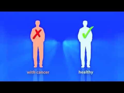 Cancer Cure - Dr Stanislaw Burzynski MD, PHD