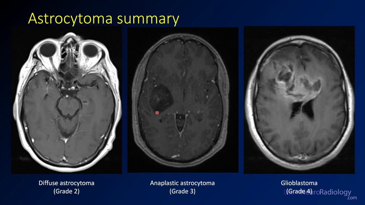 Imaging brain tumors - 2 - Astrocytomas