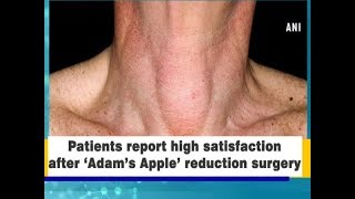 Patient's report high satisfaction after 'Adam's Apple' reduction surgery - #Health News