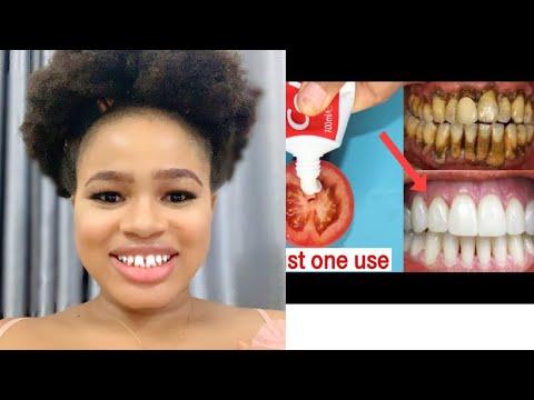 Magical Teeth Whitening