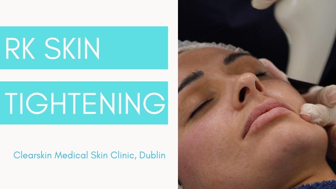RF Skin Tightening at Clearskin Clinic Dublin