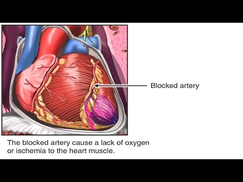 What is Coronary Artery Disease? Pathophysiology of CAD Animation - Heart Attack and Angina Video
