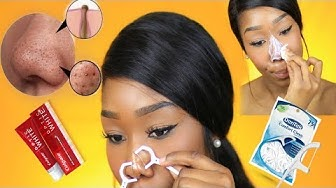 hqdefault - How To Get Rid Of Acne Bumps On Nose