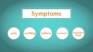 Popular Compression stockings & Deep vein thrombosis videos