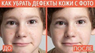 Как убрать дефекты кожи с фото?
