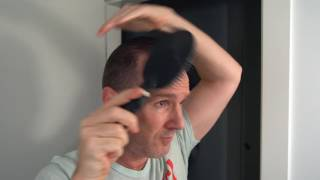 Nice Hairline! Hair Transplant Class #002 - How to Know What You're Looking At
