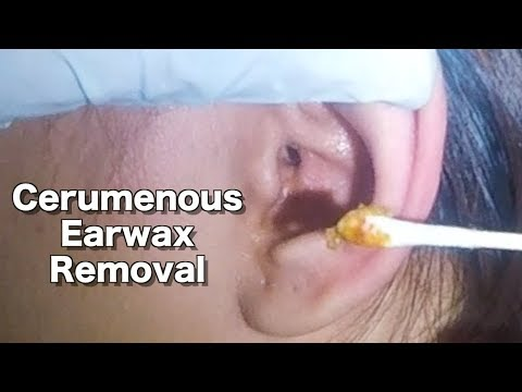 Girl's Cerumenous Earwax Removal & Ear Cleaning