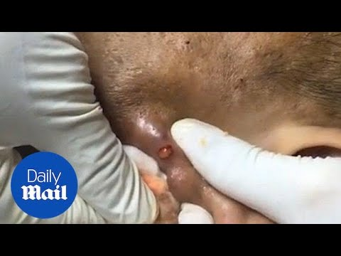 Stomach-churning moment enormous zit on ear is popped from YouTube · Duration:  1 minutes 29 seconds