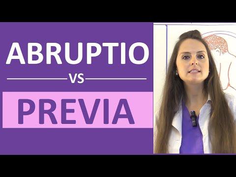 Abruptio Placentae vs Placenta Previa Nursing NCLEX Symptoms Causes Management (Placental Abruption)