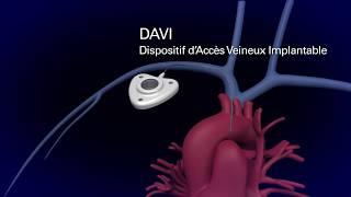 Cathéter à chambre implantable (DAVI)