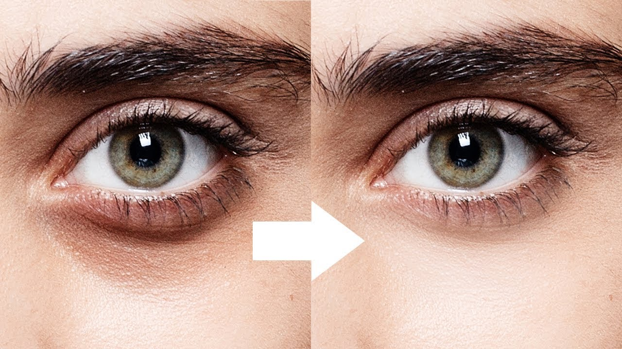1-Minute Photoshop - Remove Dark Circles Naturally - YouTube