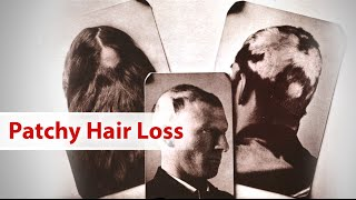 5 Tips for Patchy Hair Loss