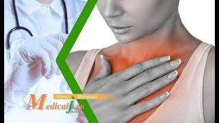 Эзофагит. Какие симптомы? Как определить? Как лечить?