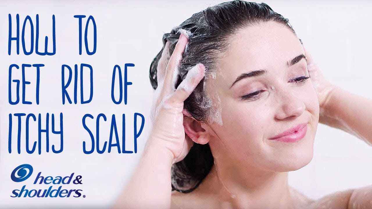 4 Hair Hacks Tips How To Get Rid Of Itchy Scalp Head