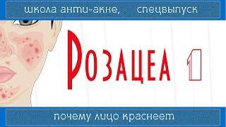 98  РОЗАЦЕА (1)   Rosacea   Лечится ли, причины и ошибки