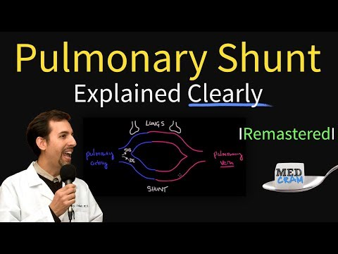 Shunting Explained Clearly (Pulmonary Shunt) - Remastered