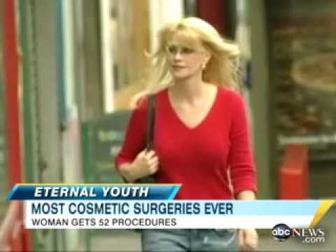 Woman Takes Anti-Age Surgeries To Extreme - ABC News