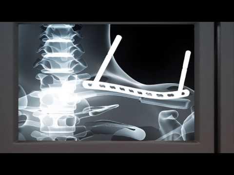 Osteosíntesis con placa bloqueada MIPO de fractura de clavícula - Jorge Cuenca Espierrez