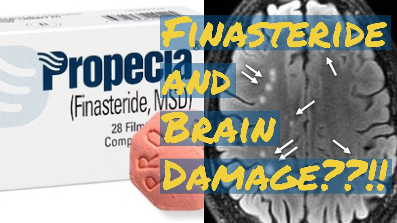 Finasteride Propecia Review Neurologicalin Damage