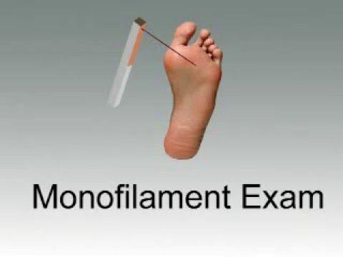 Monofilament Exam
