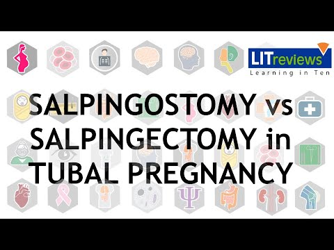 Salpingotomy versus salpingectomy in women with tubal pregnancy