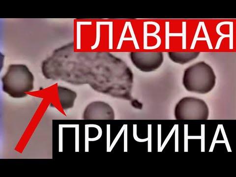 1 ПРИЧИНА МНОГИХ БОЛЕЗНЕЙ! Инфаркт, инсульт, рак, эпилепсия, диабет, рассеянный склероз и другие!