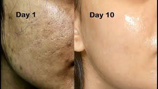 How i got rid of LARGE OPEN PORES in 1 week permanently, Aloevera icecubes & Ricewater ice cubes