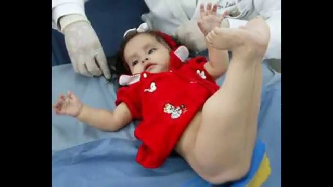 Baby Born With Mermaid Tail - YouTube