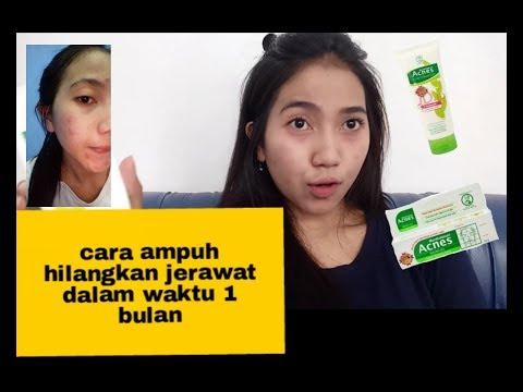 cara-ampuh-hilangkan-jerawat-dalam-waktu-1-bulan -acnes-series