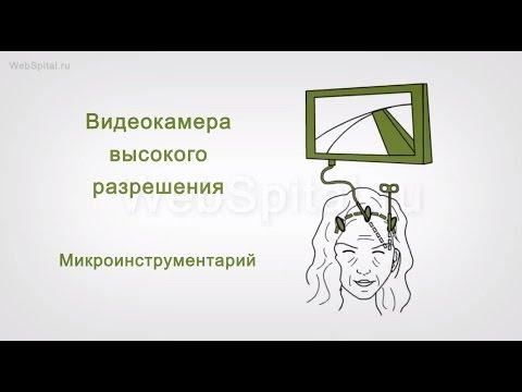 Фейслифтинг. Эндоскопическая подтяжка лица