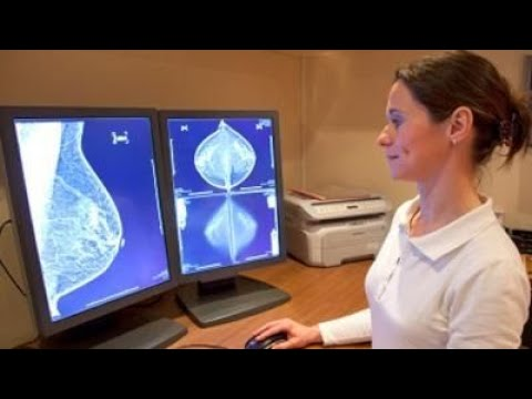 Mini MRI may be better for women at higher risk of breast cancer, study says