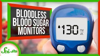 Where's My Bloodless Blood Sugar Monitor?