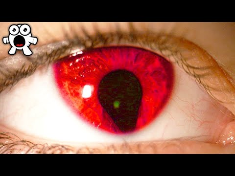 Rarest Eye Colours Spotted in Humans