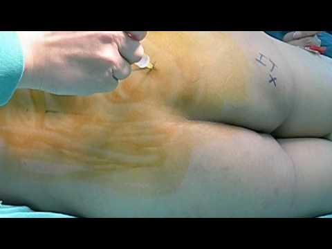 Lumbar Plexus Block and Parasacral Sciatic Nerve Block (3)