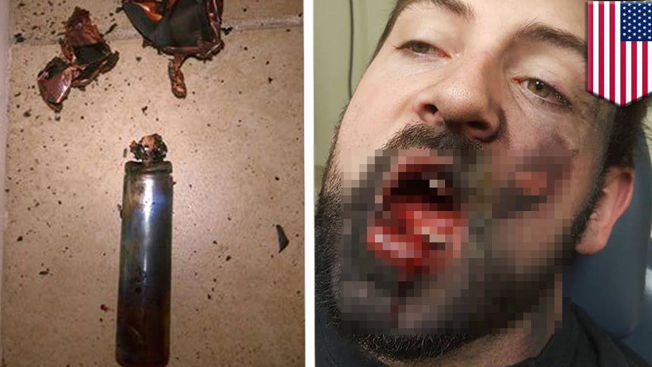 【閲覧注意】電子タバコが爆発し、歯7本折れる 米アイダホ州の男性