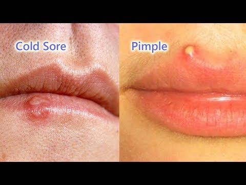 Pimple Vs. Cold Sore: The Differences, Identification And Treatment