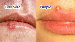 hqdefault - I Have A Very Painful Pimple On My Lip