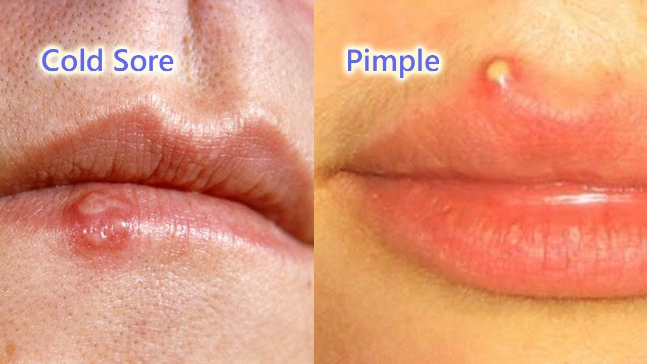 cold sore or pimple on lip pictures the art of beauty