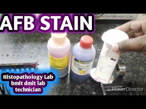 AFB stain,acid fast bacilli
