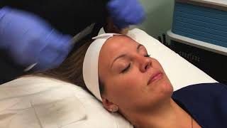 Dermaplaning and Chemical Peel Demonstration & Results