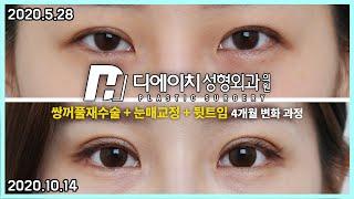 [부산 눈] 쌍꺼풀 재수술/눈매교정/뒷트임! 4개월 후…