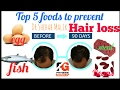 Top 5 foods to prevent Hair Loss. Best diet for Hair Loss in Men and Women