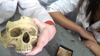 Череп. Анатомия. Внутреннее основание черепа. Урок 2.