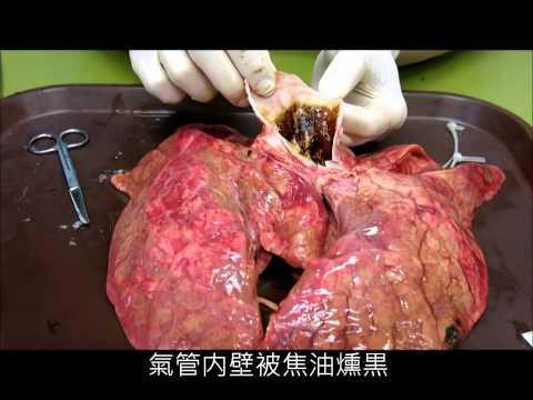 Video cận cảnh phẫu thuật phổi người hút thuốc lá lâu năm