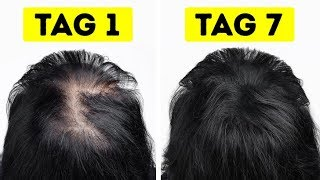 Volles, gesundes Haar in nur 1 Woche