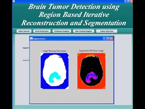 Brain Tumor Detection using Region based Iterative Reconstruction and  Segmentation Java Project