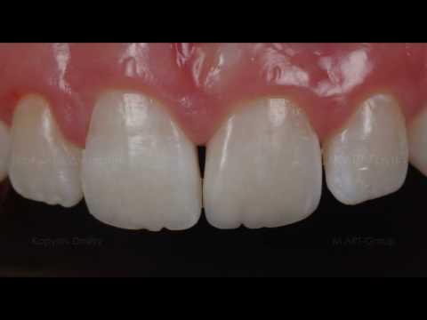 Реставрация переднего зуба. Замена старой пломбы. Front tooth restoration.