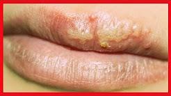 Herpes Labial ➜ 90% da População Tem Herpes - Aprenda Como Tratar e Evitar Que Este Vírus Apareça