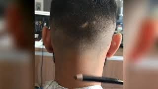 De barbear cicatrizes
