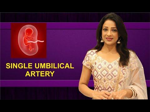 single-umbilical-artery-का-क्या-मतलब-हैं-?